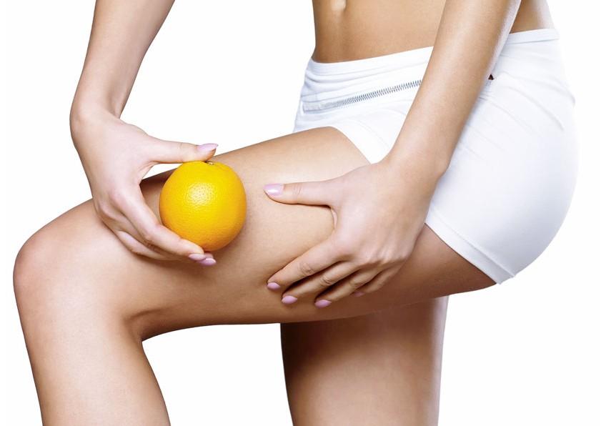 Cellulite: quali sono le cause e come riconoscerla